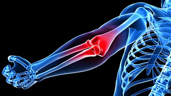Боли в локтях: причины и способы лечения