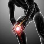 Травма коленного сустава: симптомы, виды, лечение