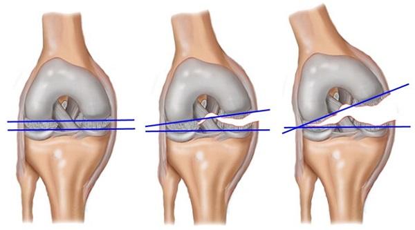 Перелом костей, составляющих коленный сустав