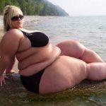 Морбидное ожирение: 4 вида лечения