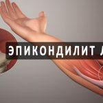 Эпикондилит локтевого сустава: причины, симптомы, лечение