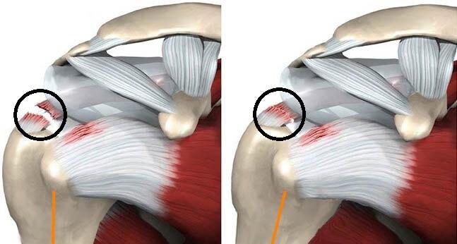 Повреждение вращательной манжеты плеча
