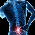 ТОП 5 скрытых причин боли в спине: пути решения проблемы