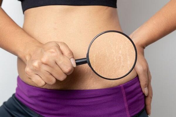 как подтянуть кожу после похудения на животе