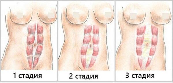 диастаз прямых мышц живота у женщин