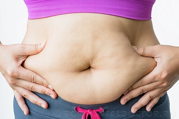 Жировые складки на животе