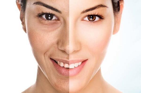 Как улучшить кожу
